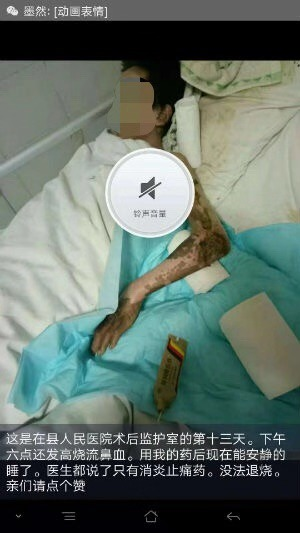 贵州惠水县秦富文研究苗药治疗乳腺癌等症取得突破